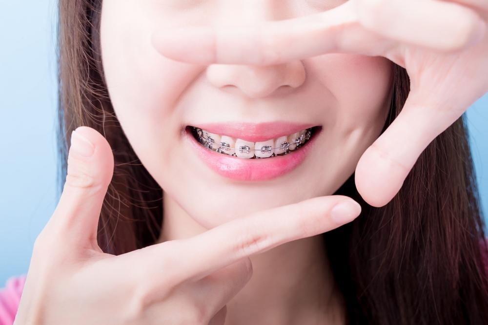 จัดฟันในช่วง Covid-19